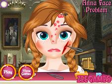 Anna Face Problems