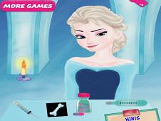 Elsa Bone Repair