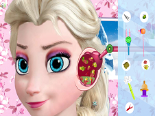 Elsa Ear Treatment