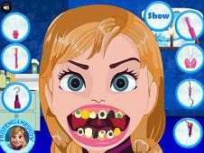 Frozen Anna Dentist Time