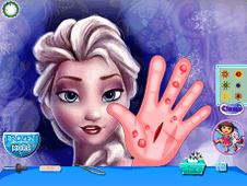 Frozen Hand Surgery