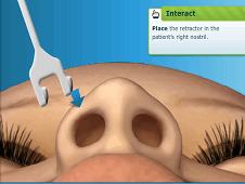Surgery Squad Nose Job