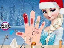 Frozen Elsas Hand Treatment